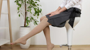 Woman sitting in professional clothing and compression stockings